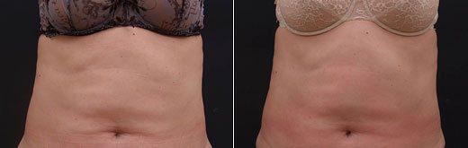 Подтяжка кожи после применения курса ЕАТ