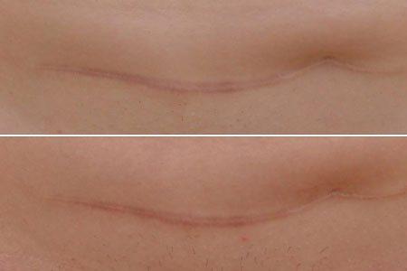 Лечение шрамов посредством ЕАТ